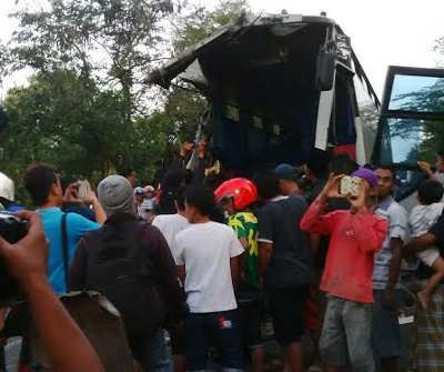 Korban Laka Bus Akas Dump Truk Jalani Operasi Sebagian Musium